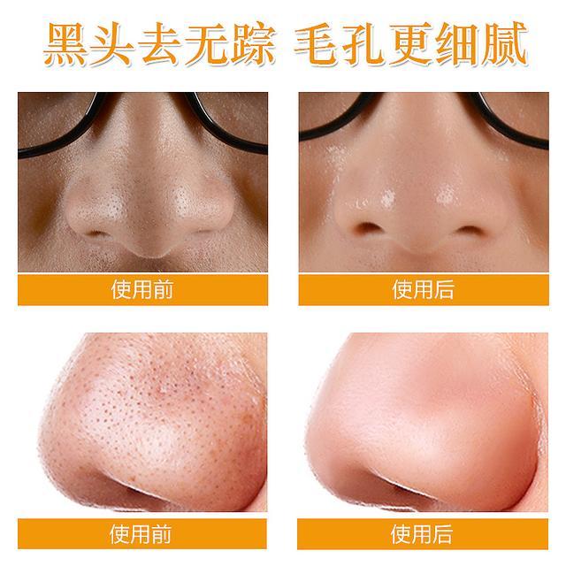 紧急!每天都洗脸,你的皮肤真的干净吗?