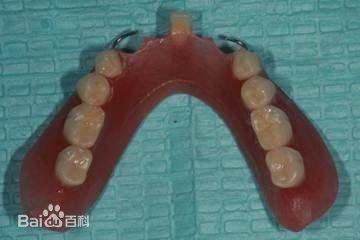 爸妈牙齿缺失,是做假牙还是种植牙?