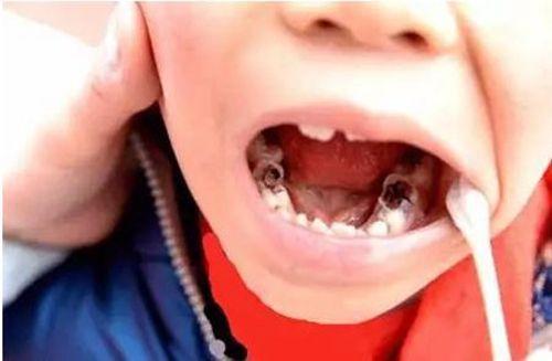 牙齿烂了一个洞,是补牙好还是直接拔了呢?多听听医生的意见吧