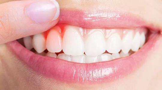 牙龈老出血,别以为只是缺少维生素,还跟3个原因有关,了解下吧