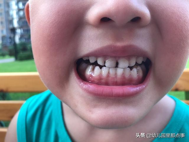 讲一万次不要多吃糖的大道理,不如让孩子看一看龋齿到底长啥样