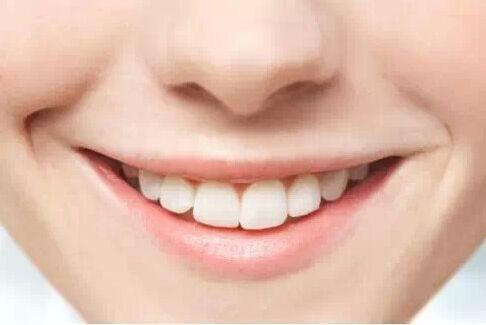 """牙齿上有""""小黑点"""",是什么原因?别不当回事,或许藏着健康隐患"""